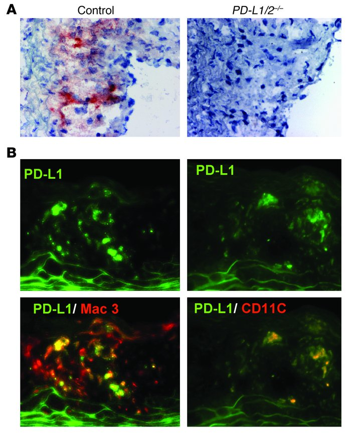 Expression of PD-L1 in atherosclerotic lesions. (A) PD-L1 was detected b...