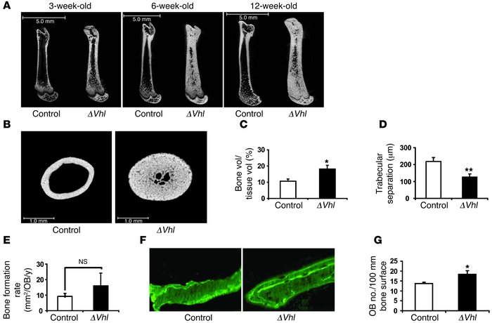 Disruption of Vhl in osteoblasts increases long bone volume.            ...