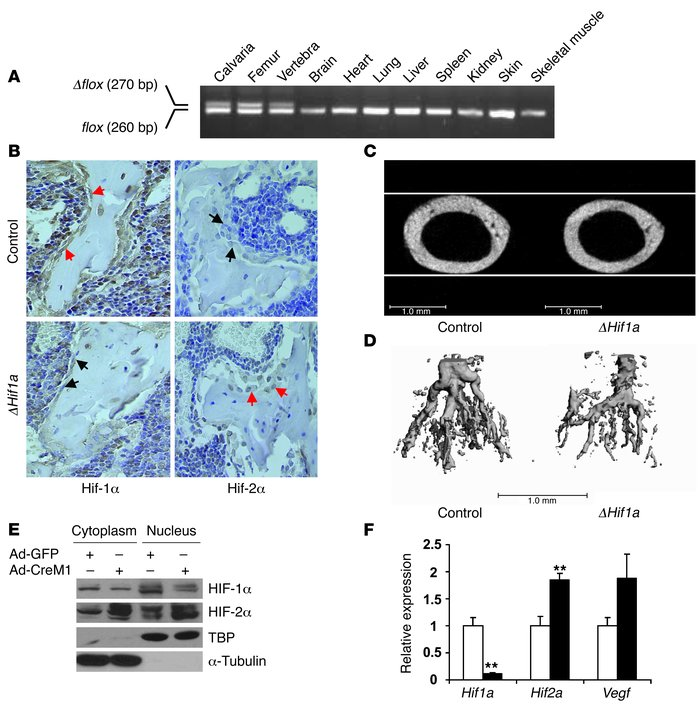 Mice lacking Hif1a in osteoblasts have narrow, poorly vascularized long ...