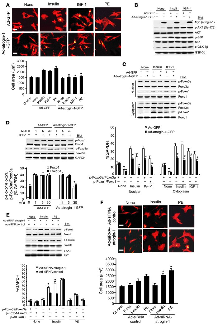 Overexpression of atrogin-1 represses insulin- and IGF-1–induced cardiom...