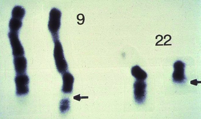 Karyotype of an individual with CML. A chromosomal preparation of cells ...