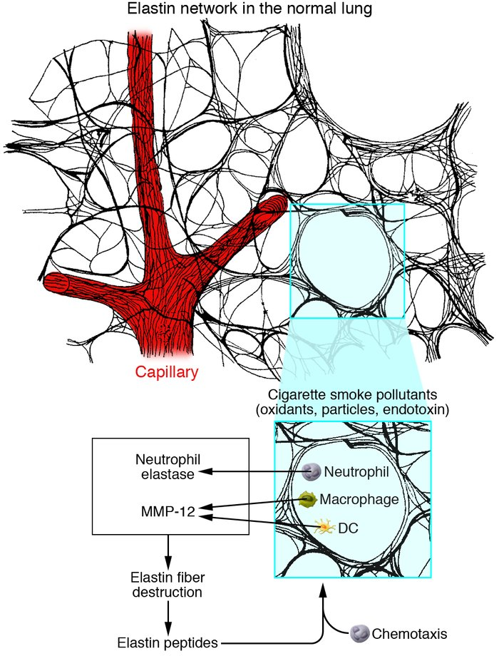 Proteolytic destruction of the elastin fiber network by cigarette smoke–...