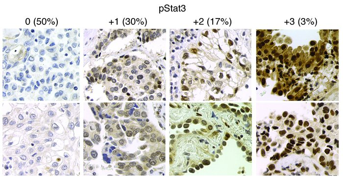 STAT3 is tyrosine phosphorylated in primary lung adenocarcinomas. Immuno...
