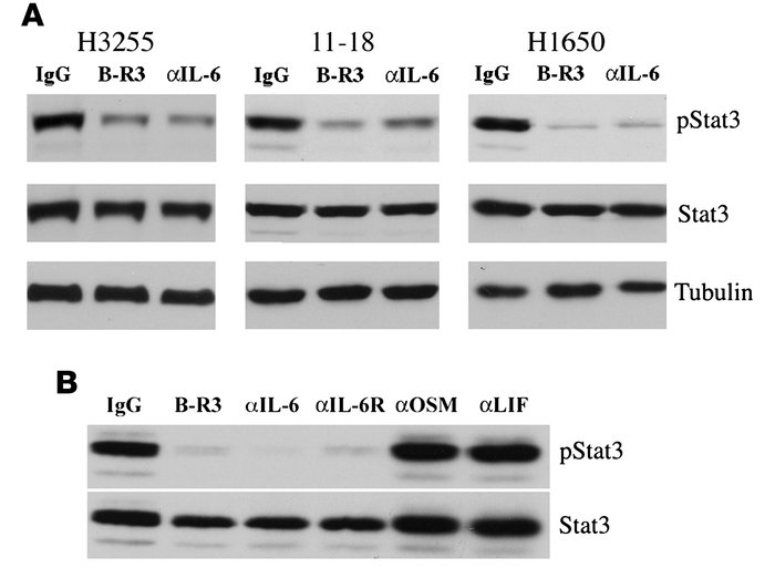 The IL-6/gp130/JAK pathway mediates STAT3 phosphorylation in lung adenoc...