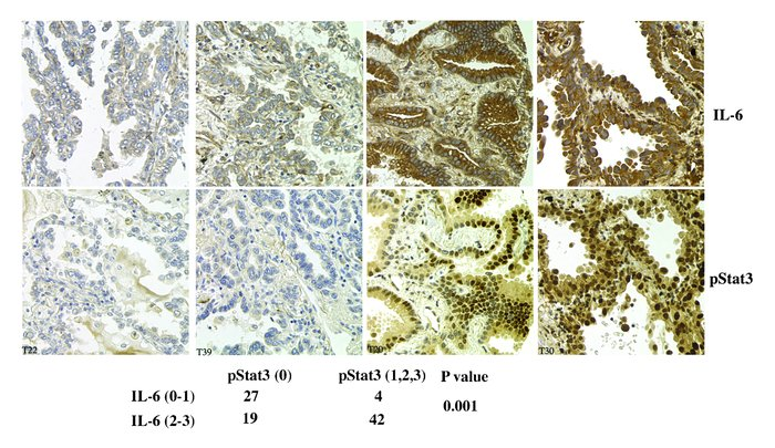 pSTAT3 levels correlate positively with IL-6 expression in primary lung ...