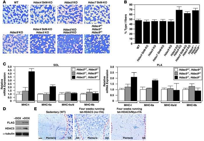 JCI - Histone deacetylase degradation andMEF2 activation promote the