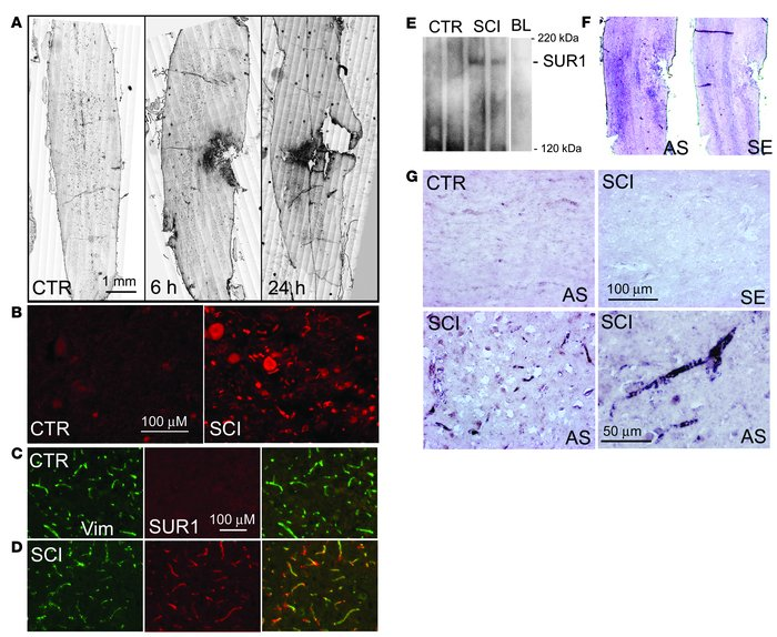 SUR1 is upregulated in SCI. (A) Immunohistochemical localization of SUR1...