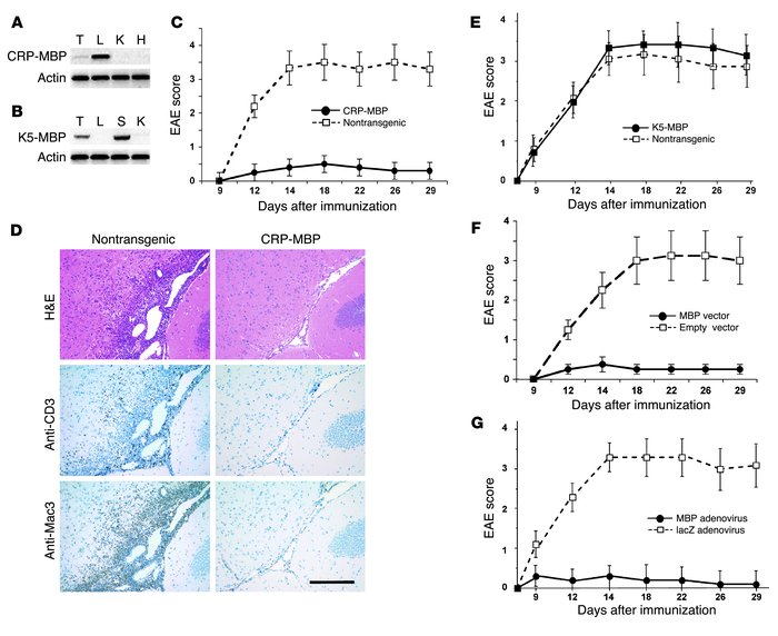 Ectopic expression of MBP in liver induces suppression of EAE. (A) CRP-M...