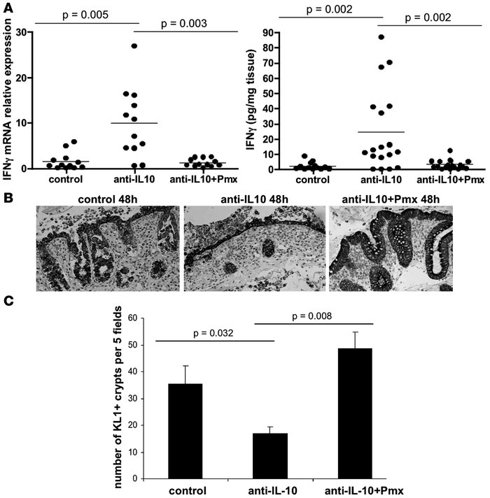 Involvement of bacterial LPS in the production of IFN-γ and epithelial b...