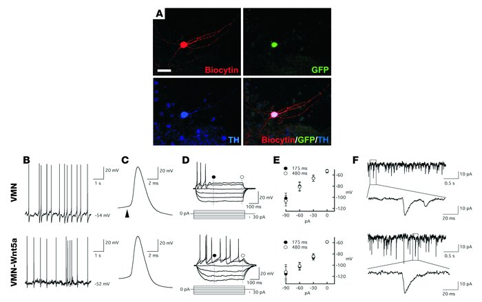 VMN-Wnt5a cells show the electrophysiological properties of midbrain DA ...