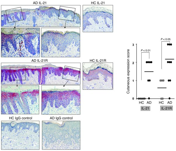 IL-21 and IL-21R expression is upregulated in skin lesions of acute AD p...
