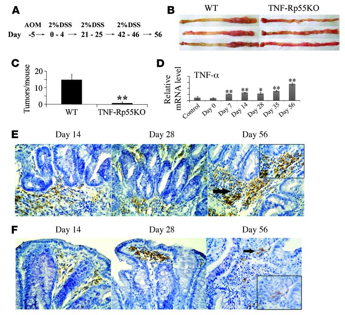 Tumor formation in WT and TNF-Rp55–/– (TNF-Rp55KO) mice after AOM and DS...
