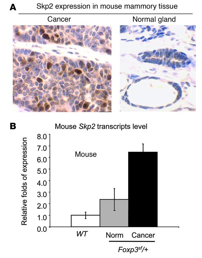 A naturally occurring mutation in the Foxp3 locus results in increased S...
