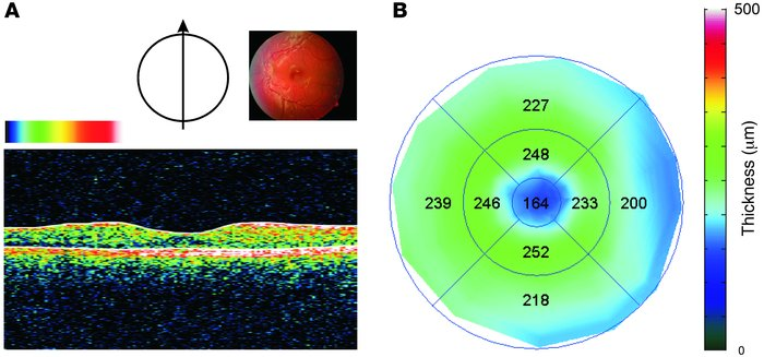 Central retinal phenotype in a representative WBS subject. (A) Optical b...