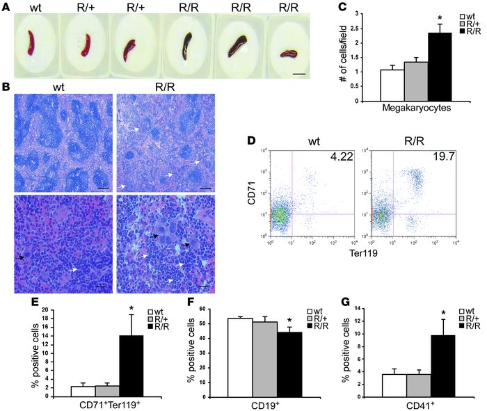 Both erythroid progenitors and megakaryocytes are increased in VhlR/R sp...