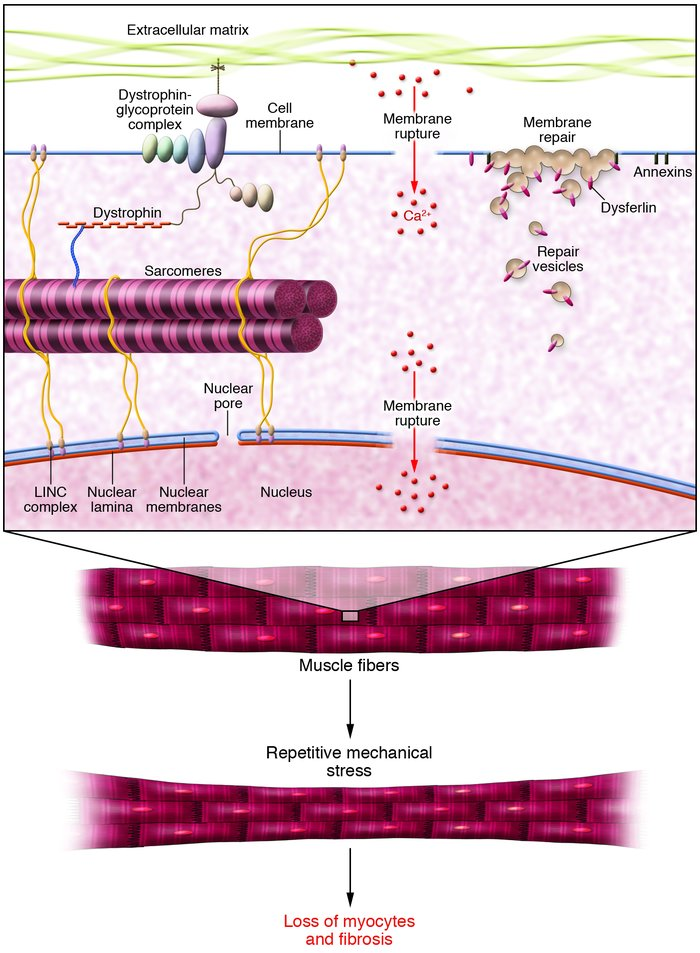 Repetitive mechanical strain causes rupture in the plasma membrane under...