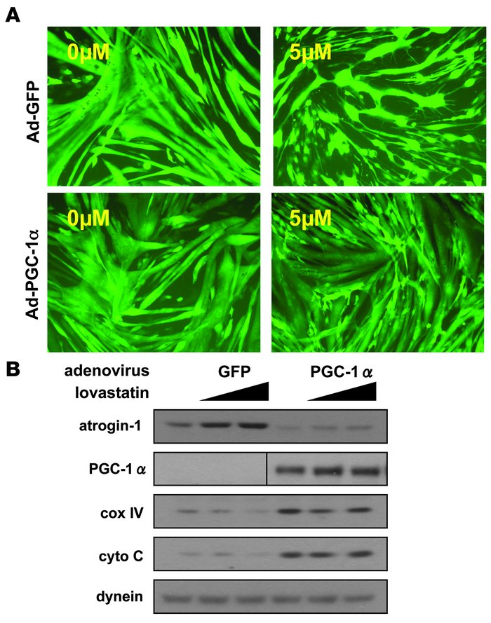 PGC-1α reduces lovastatin-induced atrogin-1 expression and muscle damage...