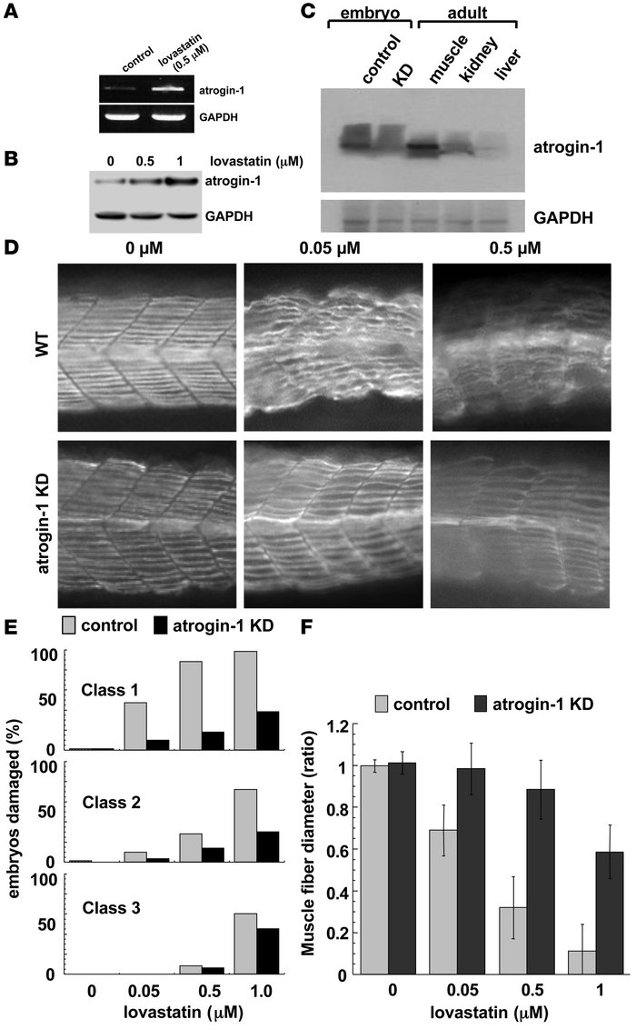 Atrogin-1 knockdown reduces lovastatin-induced muscle damage in zebrafis...