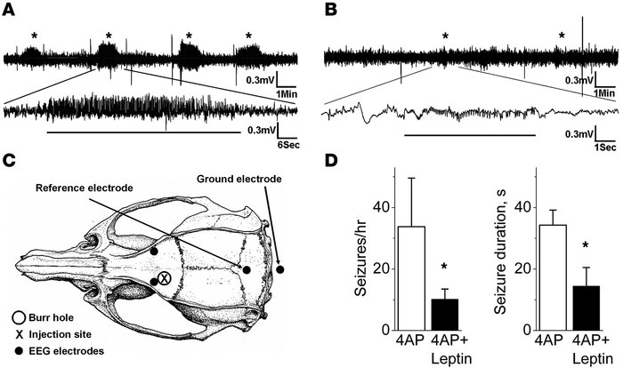 Leptin inhibits in vivo focal neocortical seizures in rats induced by 4A...