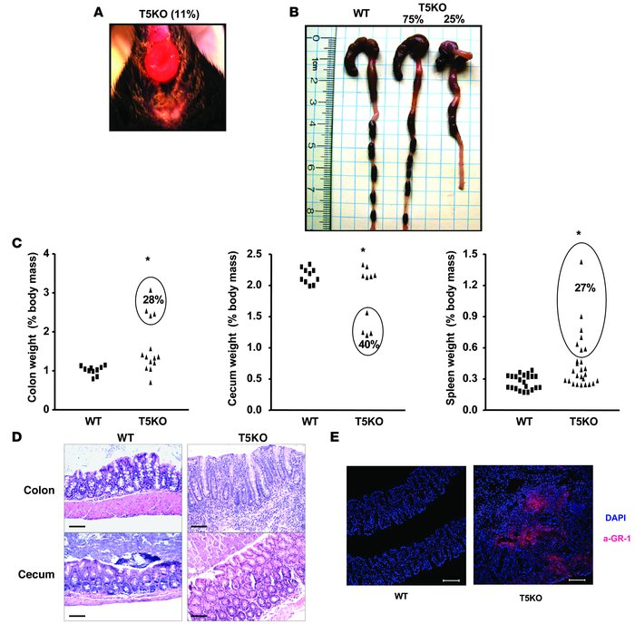 TLR5KO mice develop spontaneous colitis. (A) Representative rectal prola...
