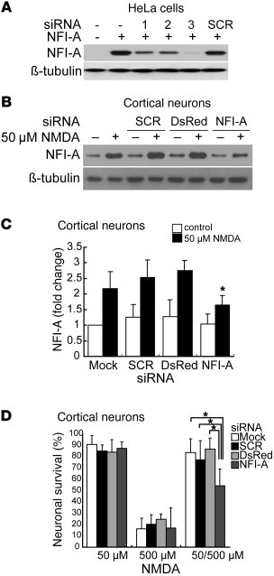 Blocking NFI-A induction by 50 μM NMDA neuroprotective treatment signifi...