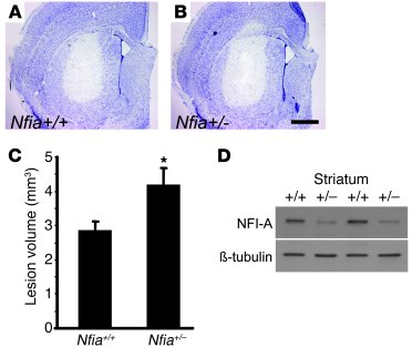 NFI-A–deficient neurons are sensitive to NMDA treatment in vivo. (A and ...