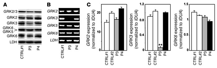 Differential steady-state levels of GRK3 products in WHIMWT fibroblasts....