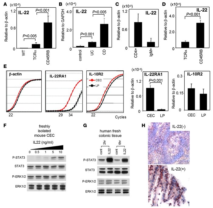 Enhancement of STAT3 activation in CECs by IL-22. (A) Expression levels ...