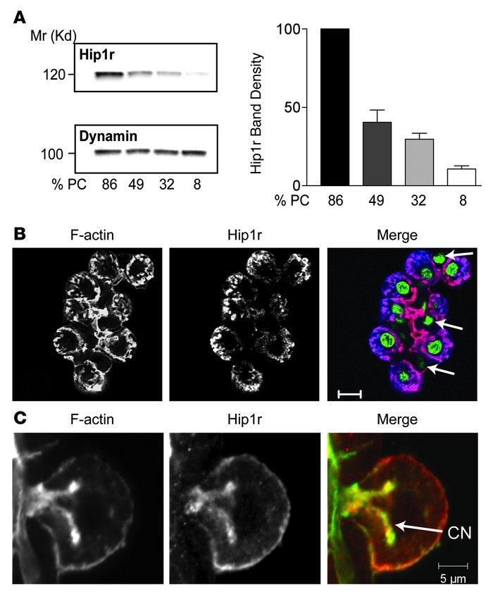 Hip1r is highly expressed in parietal cells, colocalizing with F-actin o...