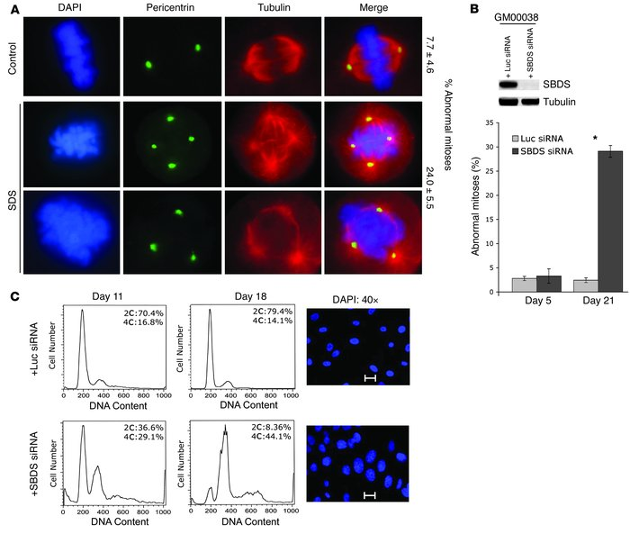 SBDS loss promotes mitotic abnormalities. (A) SBDS–/– cells exhibit mito...