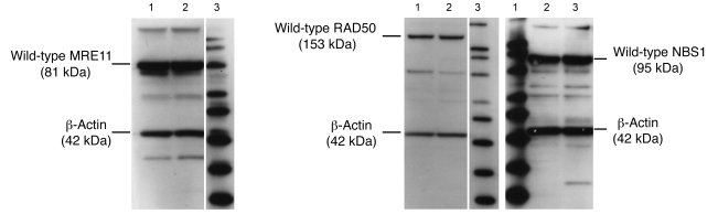 Native MRN expression in head and neck SCC cells. Native expression of M...