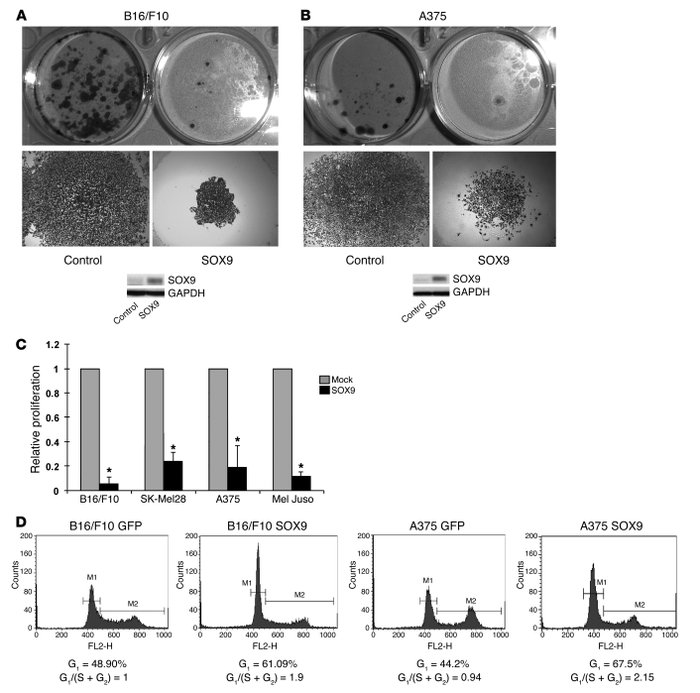 SOX9 decreases the proliferation of melanoma cells. (A) B16/F10 murine m...