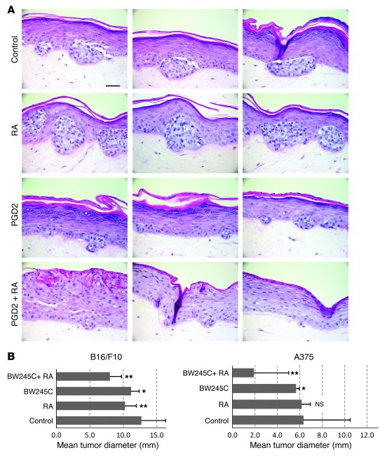 Combined treatment with PGD2 and RA inhibits melanoma growth in human ex...