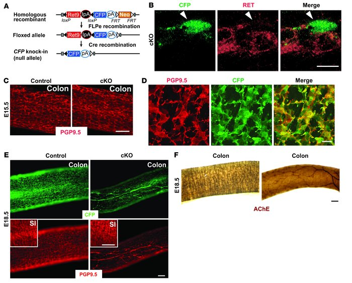 Inactivation of Ret depletes enteric neurons in the colon. (A) A gene ca...