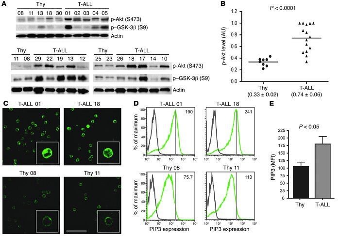 The PI3K/Akt pathway is constitutively hyperactivated in primary T-ALL c...