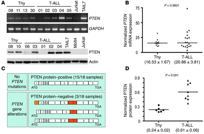 PTEN gene alterations and protein expression deregulation in primary T-A...