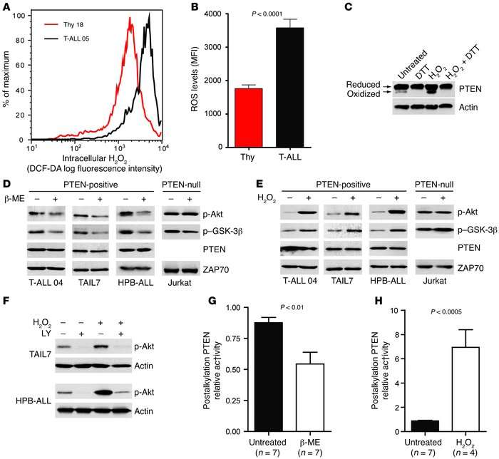 PTEN activity is downregulated by ROS in T-ALL. (A) Intracellular H2O2 l...