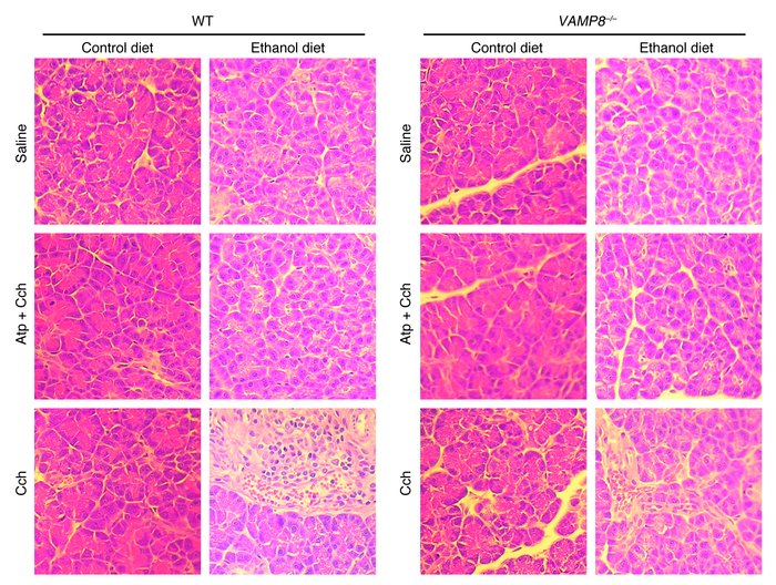 VAMP8 deletion reduces the severity of pancreatitis induced by ED plus C...