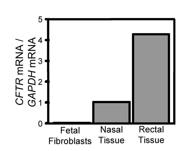 CFTR expression in pig fetal fibroblasts.                 Data are quan...