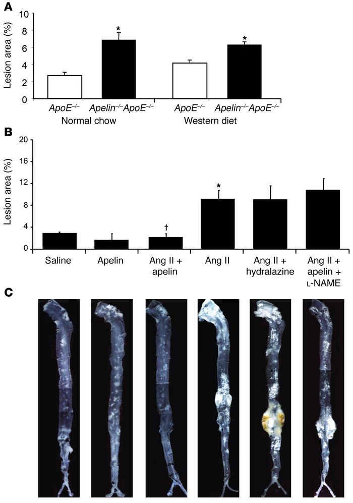 Apelin inhibits atherosclerosis in the ApoE-null model.     (A) Apelin-A...