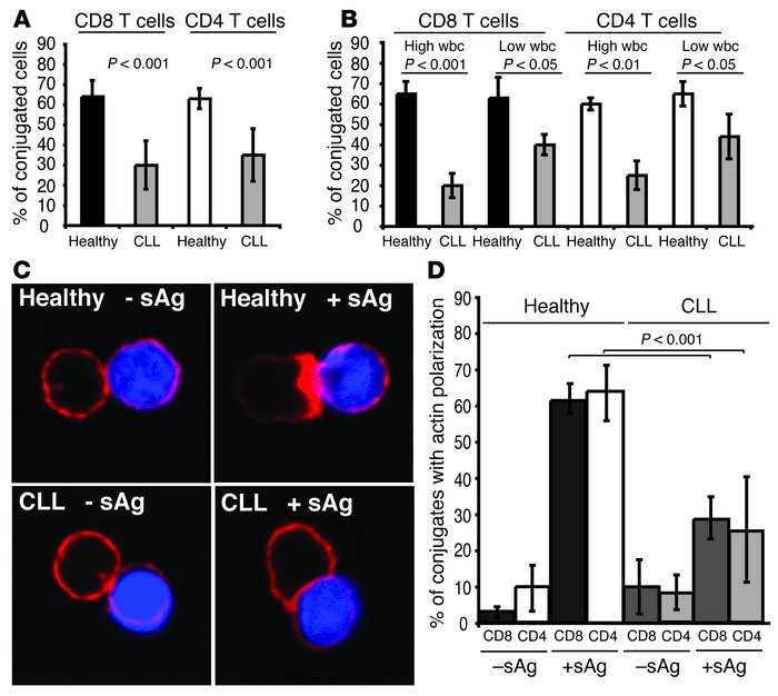 CLL patients have impaired T cell immune synapse formation. (A) T cell c...