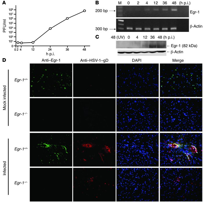 HSV-1 infection increases Egr-1 expression. The viral growth (A) and Egr...