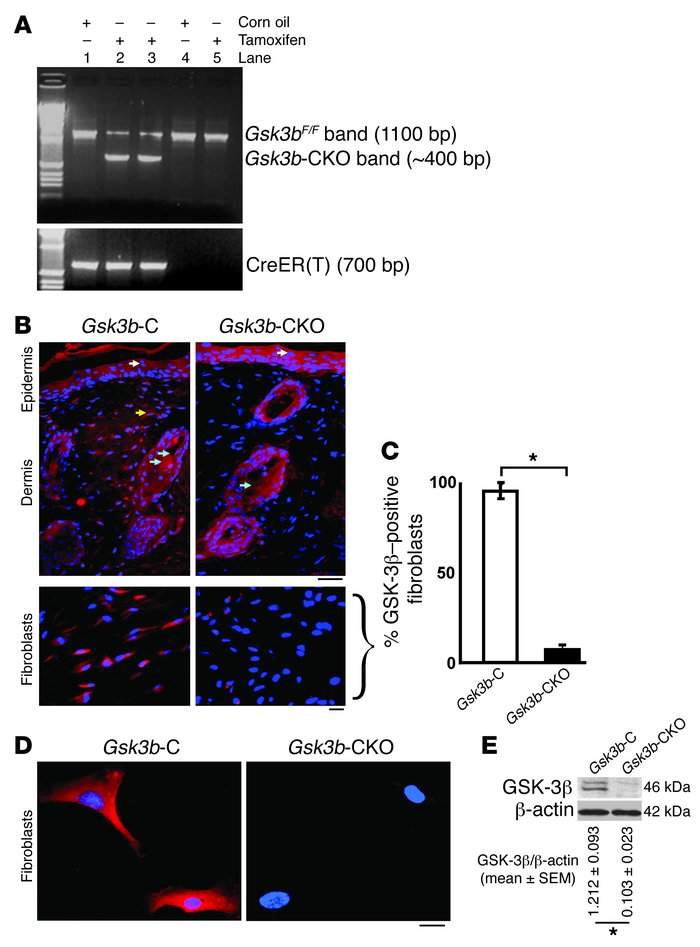 Conditional deletion of Gsk3b in fibroblasts.     (A) PCR analysis of ge...