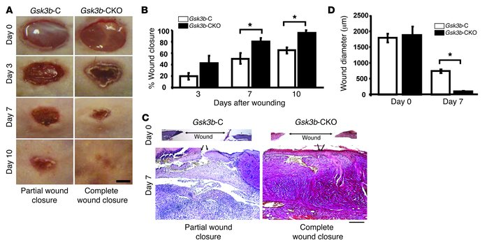 Loss of GSK-3β expression in fibroblasts results in enhanced wound closu...