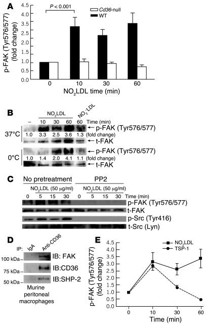 NO2LDL induces phosphorylation of macrophage FAK in a CD36- and Src kina...