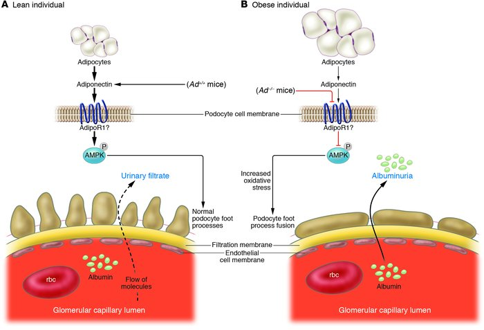 Schematic illustration of the effects of adiponectin on podocytes. (A) I...