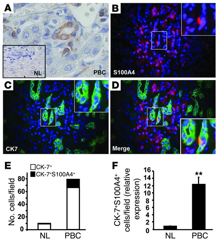 Bile ductular cells express the EMT marker S100A4 in patients with PBC. ...