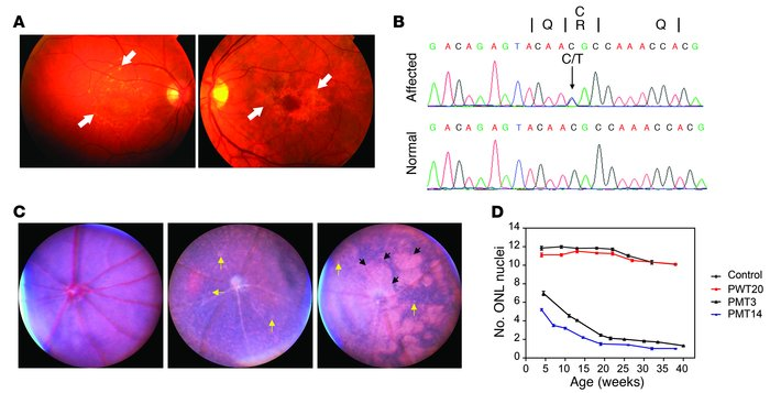 Retinal degeneration as a consequence of mutant PROM1.     (A and B) Cli...