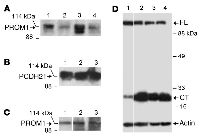 Coimmunoprecipitation of PROM1 and PCDH21 and proteolytic cleavage of PC...