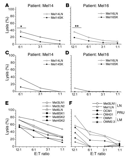 LN metastases are preferentially recognized by NK cells. (A and B) Resti...